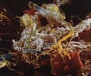 Gingivitis Bakterien 3