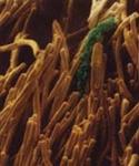 Gingivitis Bakterien